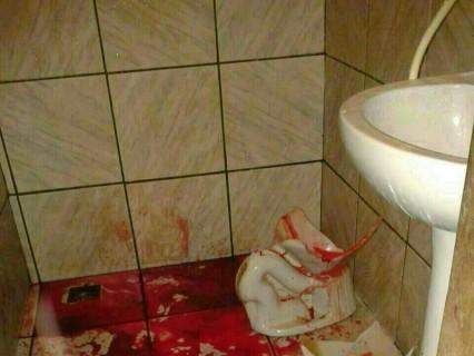 【閲覧注意】トイレの便器が割れて、女性の背中も割れた