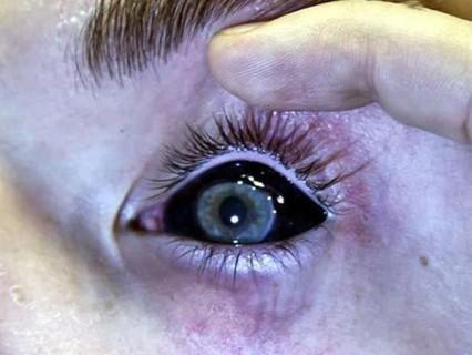 【画像】失明のリスクと引き換えに得た神秘的な瞳