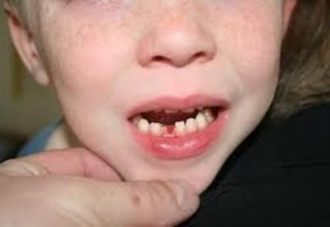 【閲覧注意】乳歯が抜ける前の子供の頭蓋骨ヤバすぎ
