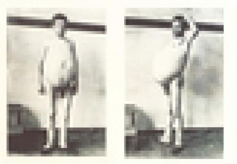 【閲覧注意】「ヒルシュスプルング病」の人間の全裸。なんだこれ・・・