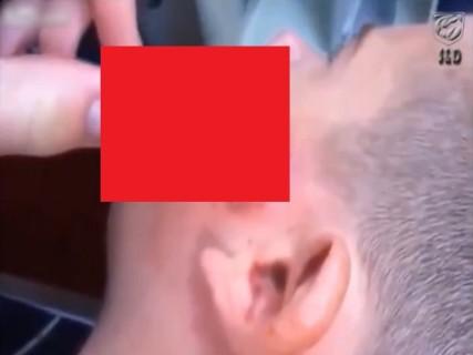 【閲覧注意】顔に穴が開いて何か出てきてる… ⇒ 引っ張ってみると・・・(動画)
