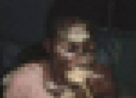 """【閲覧注意】黒人に """"漂白剤"""" かけた結果・・・(画像)"""