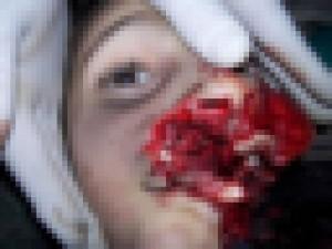 【超!閲覧注意】10歳の女の子。こんな死に方ってないだろ・・・(画像)