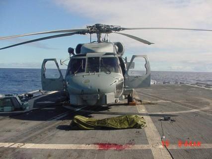 【閲覧注意】ヘリコプターのプロペラで切断された人間をご覧ください