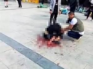 【閲覧注意】公園でケンカした相手が「中国人のギャング」だったらこうなる(画像)