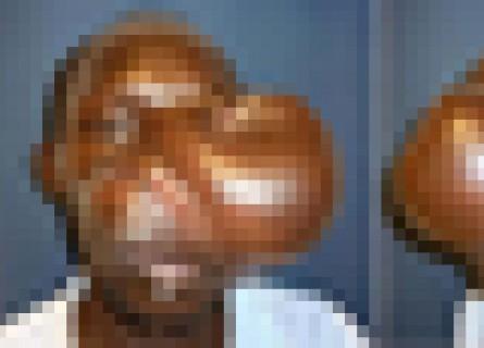 【閲覧注意】奇形で人の顔とは思えなかった男を5年ぶりに見た結果・・・