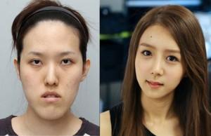 """【画像】韓国の超美女たちの """"整形前の顔"""" 、もはや誰だか分からないレベル・・・"""