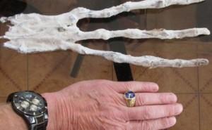 【画像】ペルーで発見された「エイリアンの手」⇒ レントゲン写真撮った結果…