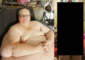 人間が「300kg」痩せたらこうなるらしい・・・(画像)