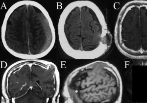 【閲覧注意】「脳ヘルニア」とかいう一番怖いヘルニア・・・(画像)