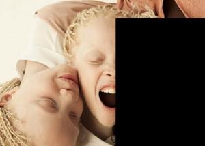 【画像】「世界で最も異なった容姿を持つ」と言われるブラジルの3姉妹