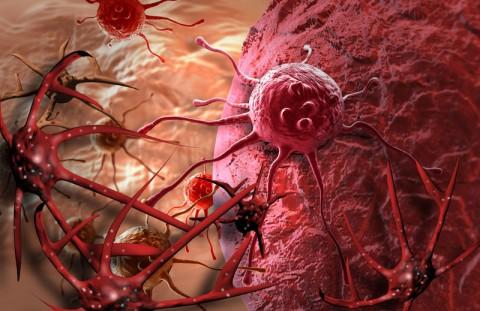 【閲覧注意】乳癌 vs. 目癌