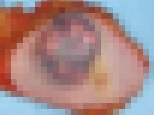 【閲覧注意】乳がん、ヤバすぎる(画像)