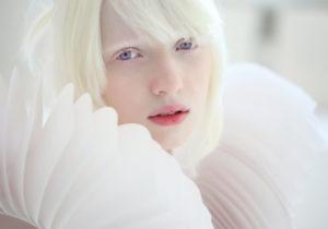 【閲覧注意】アルビノ「先天性白皮症」の人間が美しいと思ってるやつ、これ見ろ…(動画)