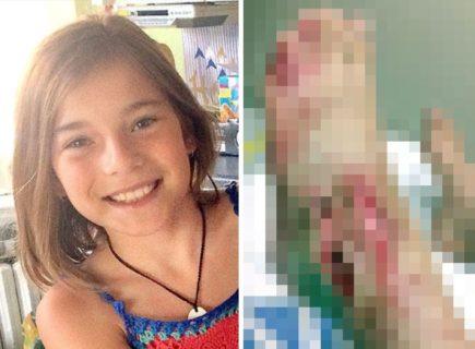 【閲覧注意】湖を泳いでいた11歳の娘が恐ろしい叫び声を上げた ⇒ 陸に上げると…(画像)