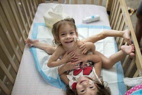 体がくっついた女の子2人(結合双生児)を分割した結果・・・(画像)