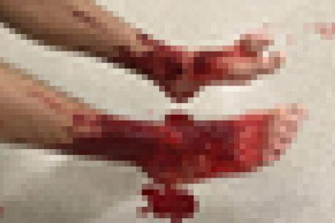 """【閲覧注意】海水浴場で異常事態。足から大量の血… 今 """"ヤバい生物"""" が話題になってる(画像)"""