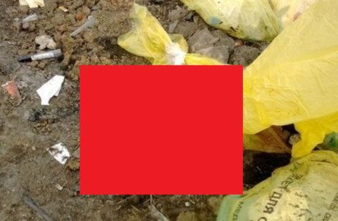 """【閲覧注意】病院のゴミ捨て場に """"最も闇が深いもの"""" が捨ててあったんだが…(画像)"""