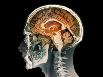 【閲覧注意】精神分裂病の患者さん、やらかす・・・(画像)