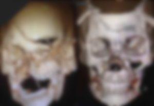 【画像】事故で顔面崩壊した人が普通の顔に ⇒ レントゲン写真見たらヤバすぎた