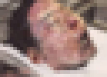 【閲覧注意】ブラジル人美女と結婚した日本人男性はこうなる・・・恐ろしい画像