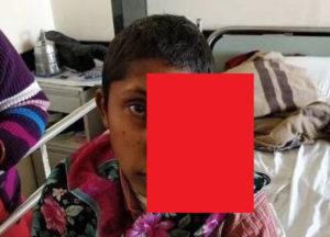 【閲覧注意】「顔が気持ち悪い」と親に捨てられた15歳の少女をご覧ください…(画像あり)