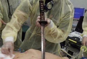 """【閲覧注意】""""日本刀"""" で喧嘩した結果が・・・・・(画像あり)"""