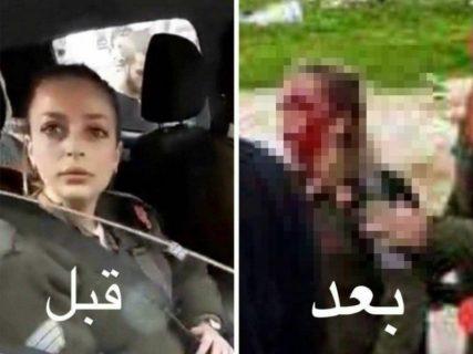 【閲覧注意】イスラエルの美人すぎる女性兵士、実際に戦場に出たらこうなる…(画像あり)