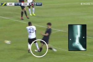 【狂気】2日前のサッカーの試合で放送事故。選手の足が90度逆に折れ曲がる