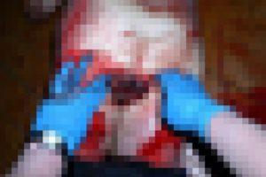 """【閲覧注意】レ●プされすぎて亡くなった女性の """"股間"""" がやばい…(画像あり)"""
