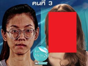 【驚愕】タイ人の超ブサイク女性が韓国で整形しまくった結果・・・(画像あり)