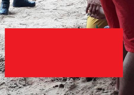 【閲覧注意】3日前、海水浴場でサメに襲われた男性の画像… これはアカン…
