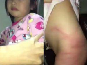 """【閲覧注意】4歳の幼女がお父さんに """"やられた事"""" をご覧ください…(動画あり)"""