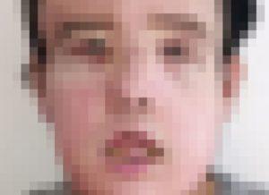 """【閲覧注意】43歳の男性に22歳の """"顔面"""" を丸ごと移植した結果・・・(画像あり)"""