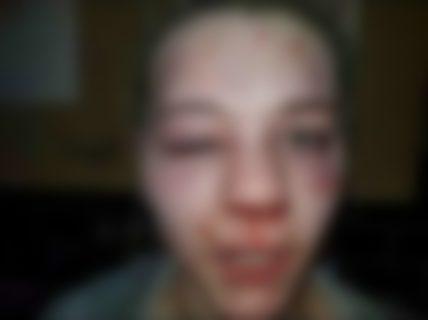 【悲報】モテモテの10代ギャル、2分間顔をボコボコにされ精神が崩壊する(動画あり)