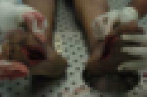 【閲覧注意】警察の取り調べがエグすぎると話題に ⇒ 容疑者の足をご覧ください…(画像)