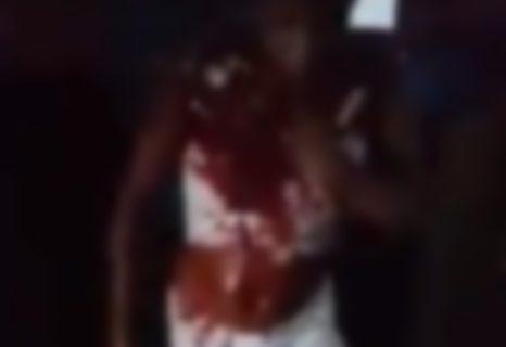 【閲覧注意】飲み屋の喧嘩で負けた女の子の姿がヤバイと話題に