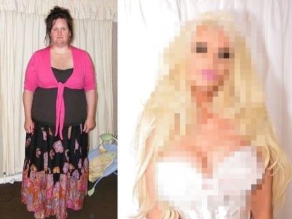【驚愕】デブ+ブサイク女性が90kg痩せて100万円で全身整形 ⇒ 結果www(画像あり)