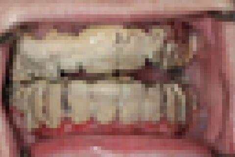 【閲覧注意】20年間 歯を磨かなかったキチガイ、ついに歯医者へ…(衝撃動画)