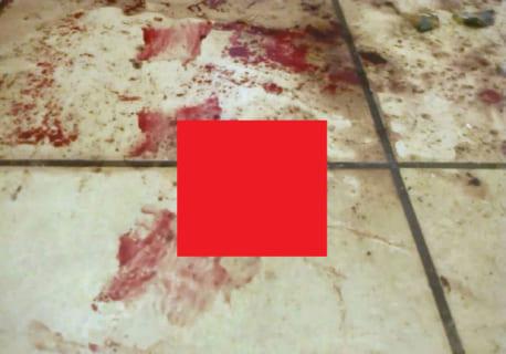 【閲覧注意】中国人の少女、自分をレ●プしようとしたガーナ人男性の性器を切断