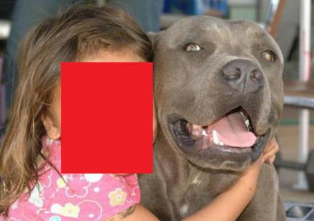 """【閲覧注意】""""世界で最も狂暴な犬"""" と幼女 ⇒ その後こうなりました…(画像あり)"""