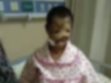 【超!閲覧注意】顔の癌、ガチでとんでもない・・・・・