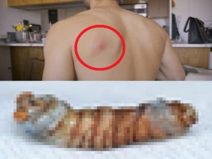 """【閲覧注意】昆虫学者さん、寄生虫 """"ボットフライ"""" を自分の体の中で育ててしまう…(画像あり)"""