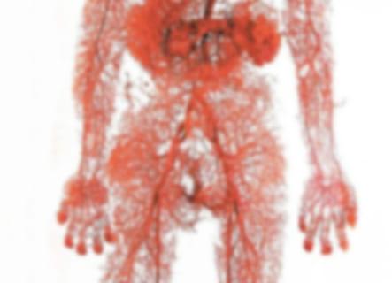 """【閲覧注意】人間から """"血管だけ"""" を抜き出したらこうなる(画像)"""