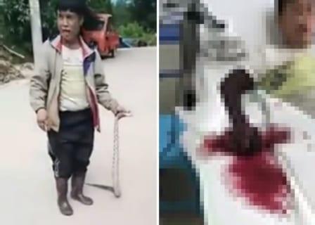 【閲覧注意】猛毒蛇と遊んでるこのバカ、今から恐ろしい姿になります・・・(動画あり)