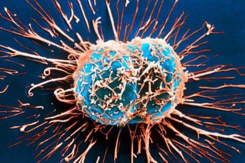 【閲覧注意】乳がんのステージ4、ガチでとんでもない・・・・・