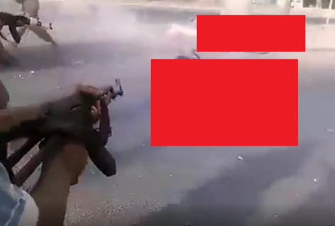 【閲覧注意】イエメン、もはや地獄絵図
