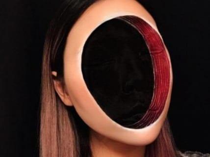 【閲覧注意】顔が下からどんどん無くなっていく病気、ガチで怖すぎる(画像あり)