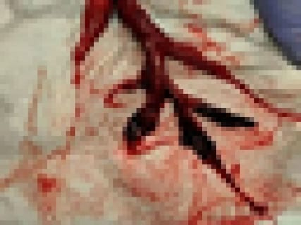 【閲覧注意】その後死亡した64歳男性の肺にあった「20cmの血栓」が怖すぎると話題に