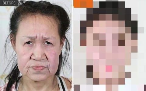 【超衝撃】おばあちゃんにしか見えない15歳の中国人少女、整形した結果・・・(画像)